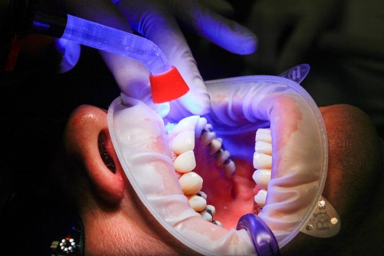 dentist-1864921_960_720.jpg